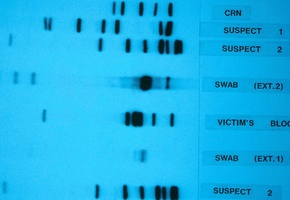 DNA sequencing gel